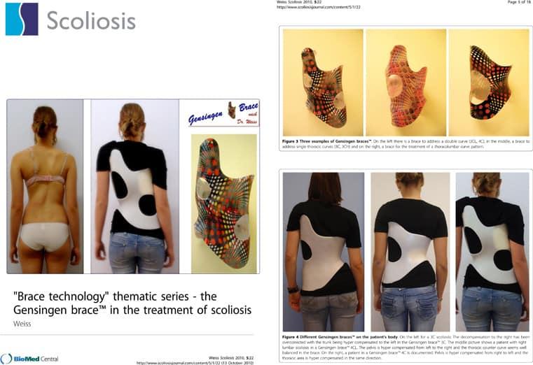 perbedaan brace yang bagus untuk skoliosis