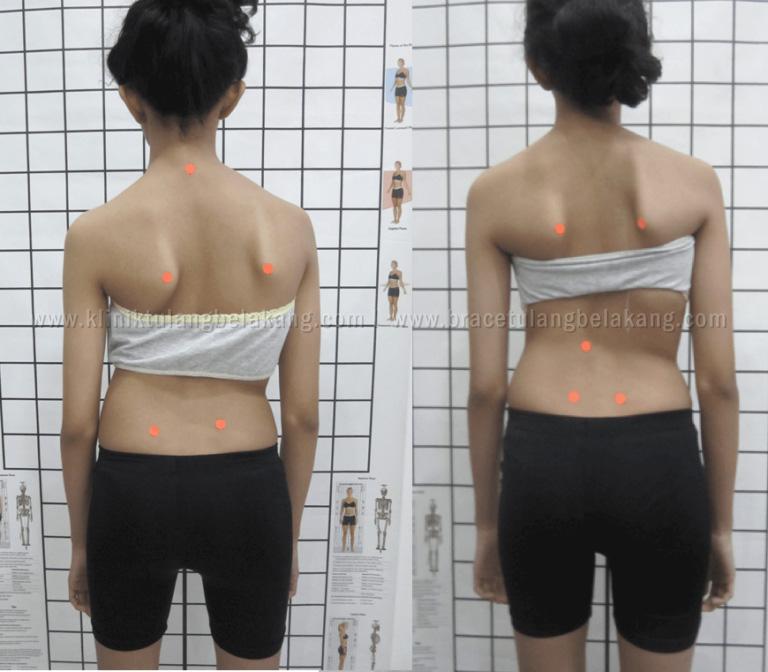 Perbaikan Postur tubuh pada Skoliosis Berat