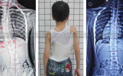 Deteksi Dini Scoliosis + Pengobatan yang tepat = Kesembuhan yang pasti!