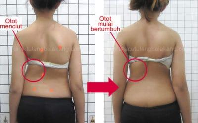 Otot dapat bertumbuh kembali setelah pemakaian Brace GBW