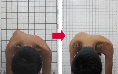 Scoliosis Anda dapat dikoreksi dengan Brace GBW