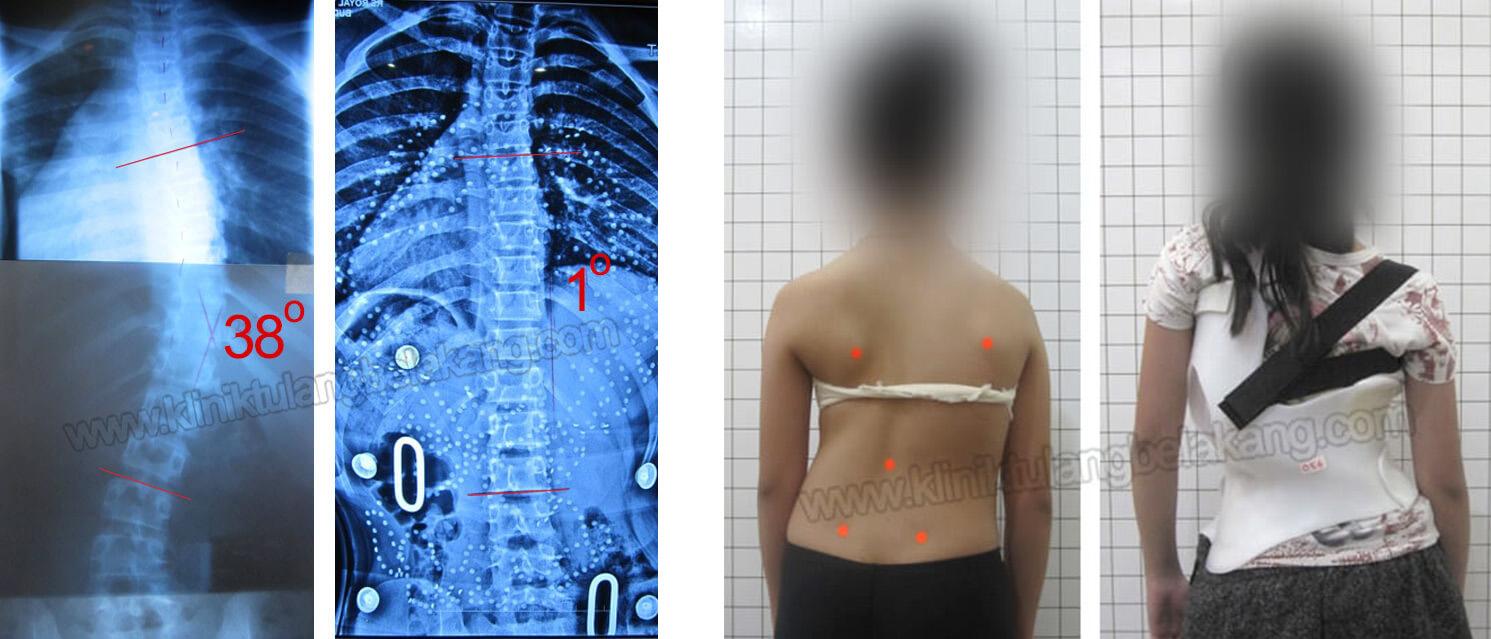 Scoliosis pada umur 12 tahun dapat kembali lurus