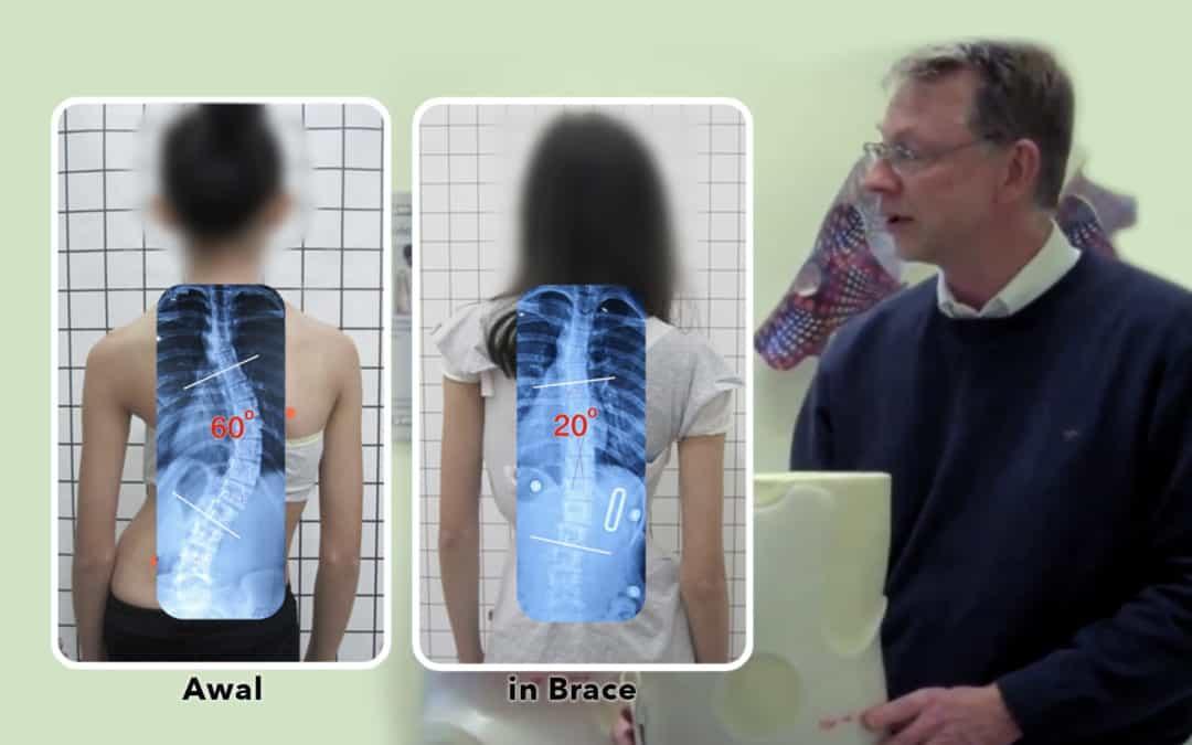 Kenapa Brace Scoliosis GBW berhasil dan brace lainnya tidak seberapa?
