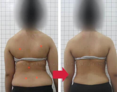 brace untuk penderita skoliosis