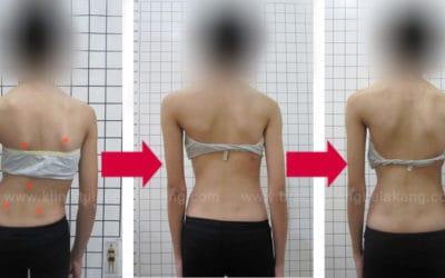 Lagi.. Hasil menggembirakan dari Pasien Scoliosis Brace GBW