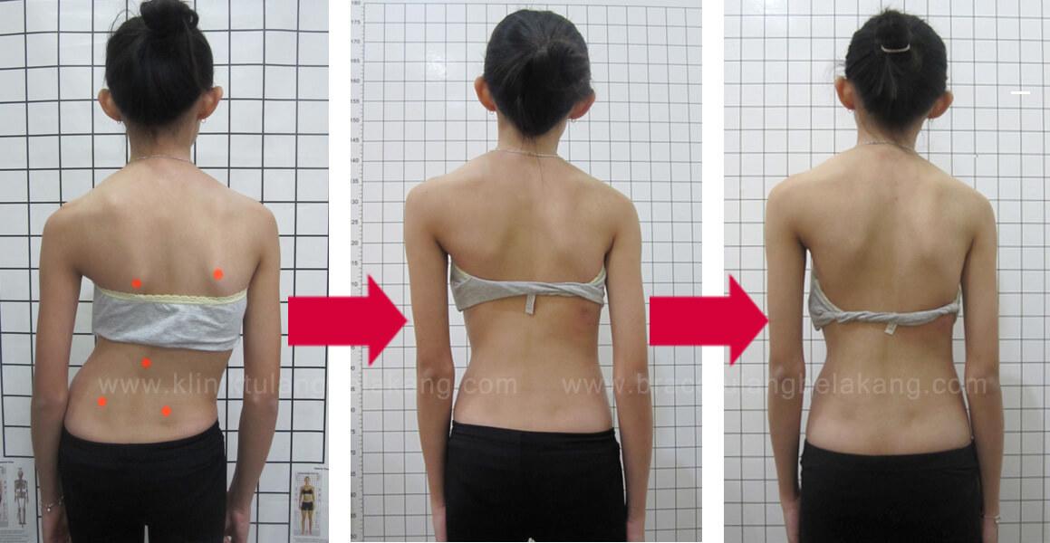 Sertifikasi Rehab Scoliosis Schorth Best Practice