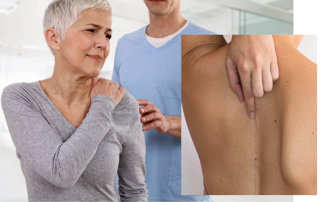 Rehabilitasi Pasien Scoliosis Post-operasi dan Manula dengan terapi Akupuntur