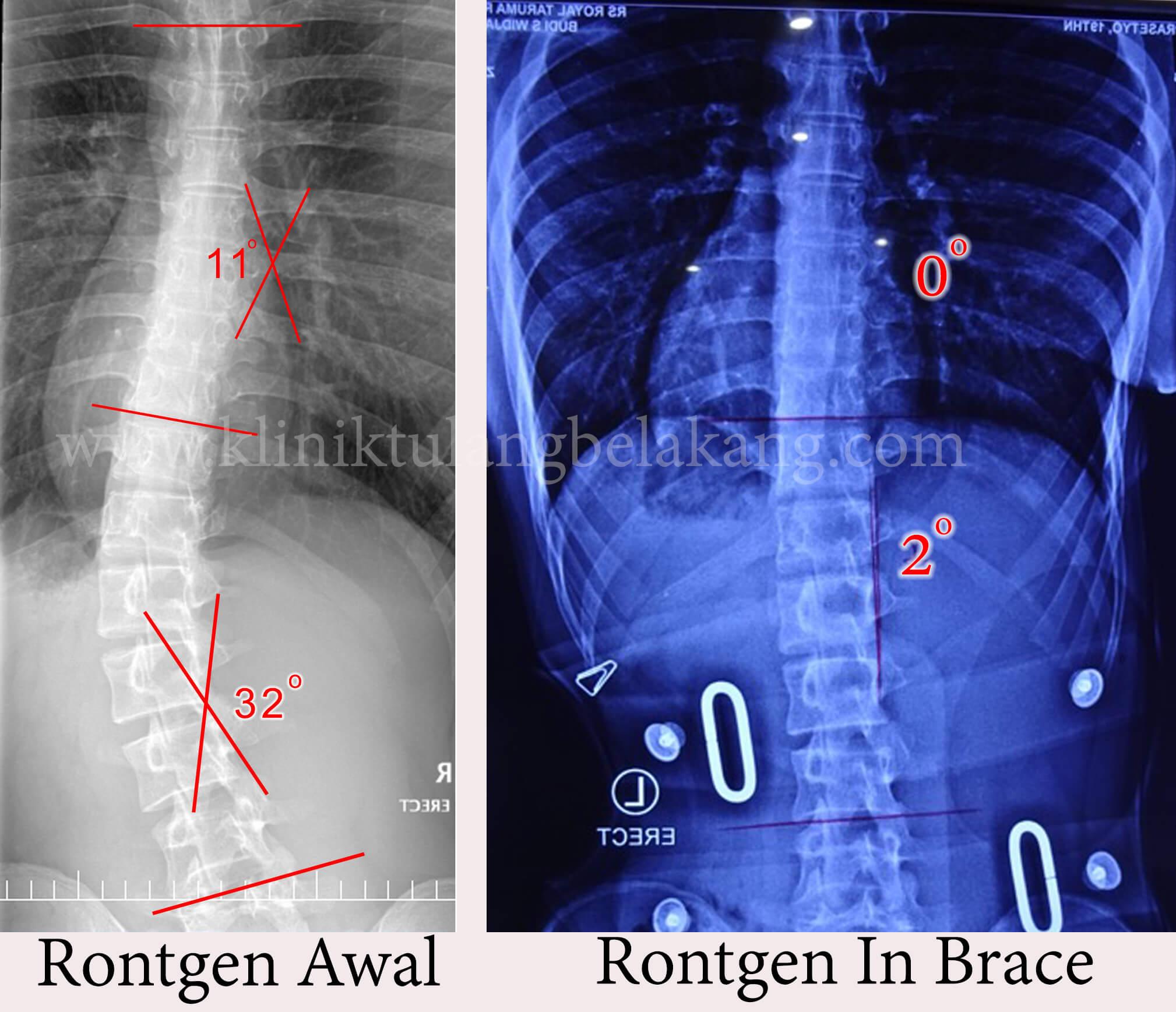 Brace GBW untuk rehabilitasi Scoliosis
