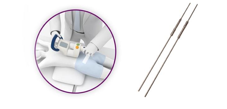 Magec Rods: Operasi Skoliosis Teknik Baru yang perlu Dipertanyakan