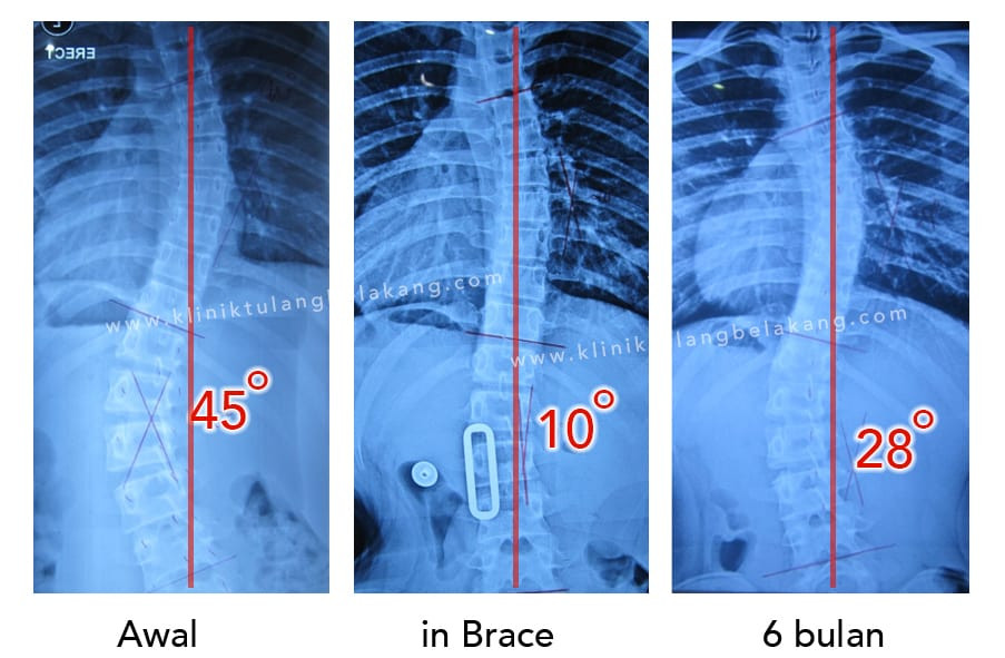 hasil rontgen pasien tanpa operasi skoliosis
