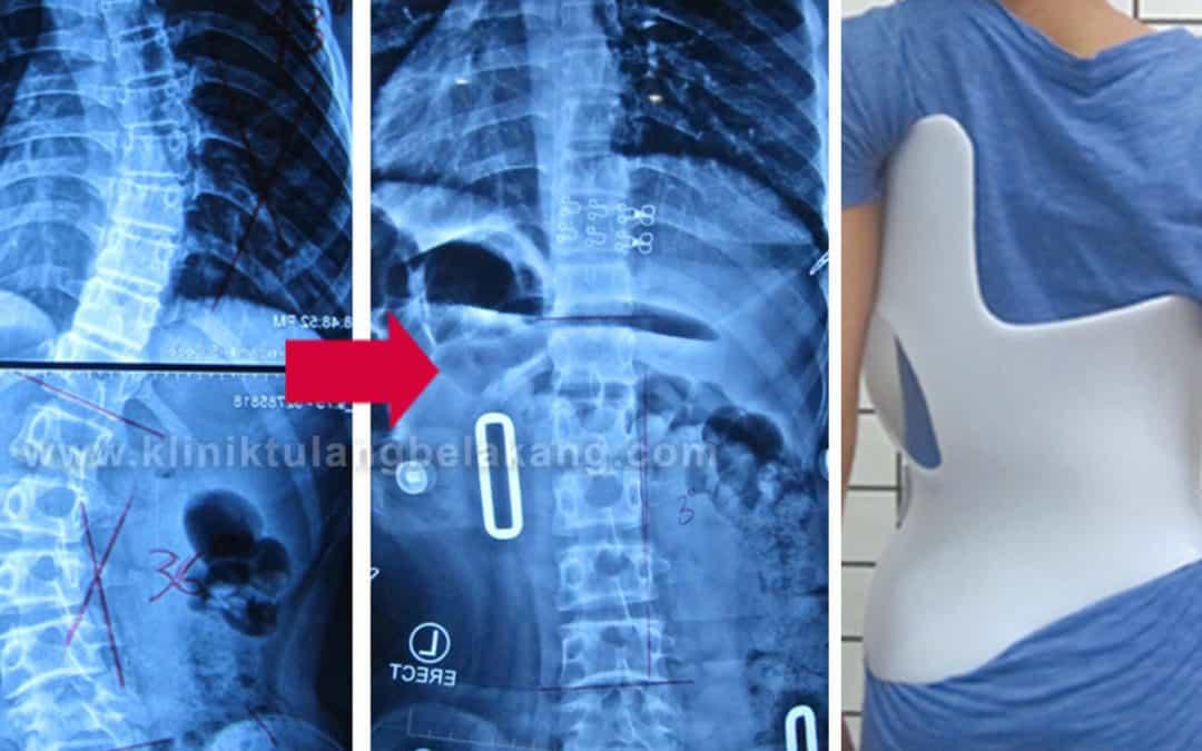 Brace GBW mampu mengkoreksi lengkungan dan rotasi Scoliosis
