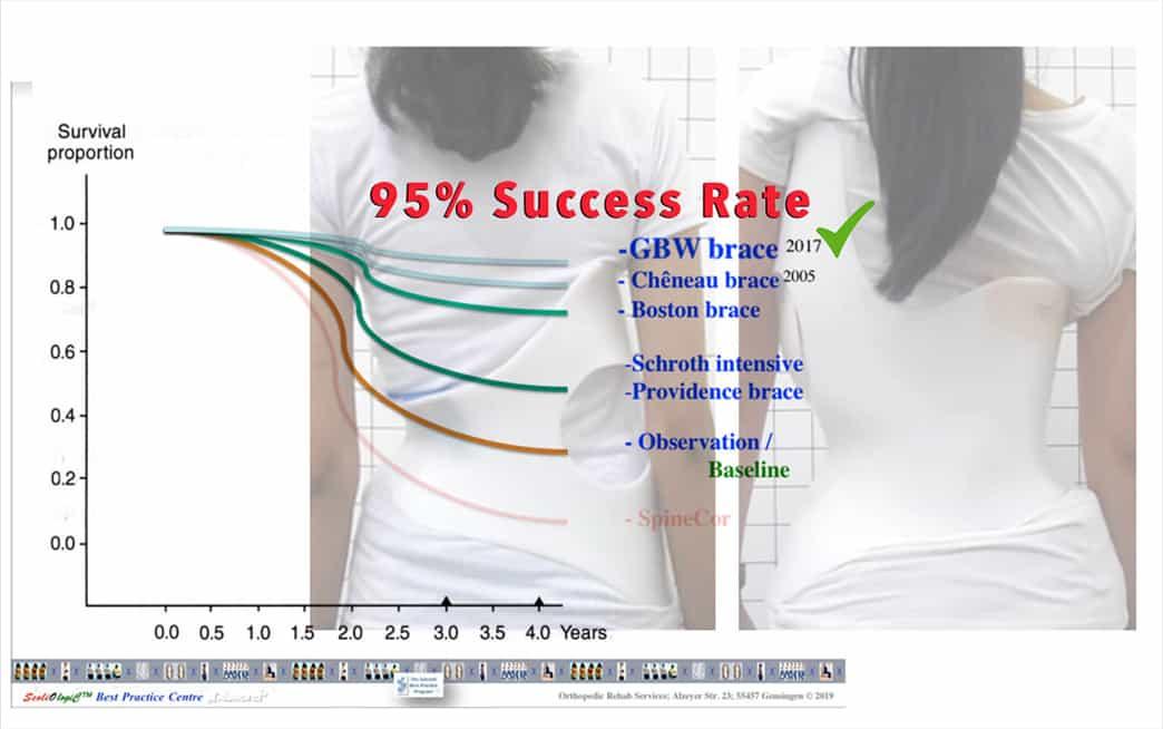 Klasifikasi dan Cara Kerja GBW 3D Brace untuk Penderita Skoliosis yang Efektif!