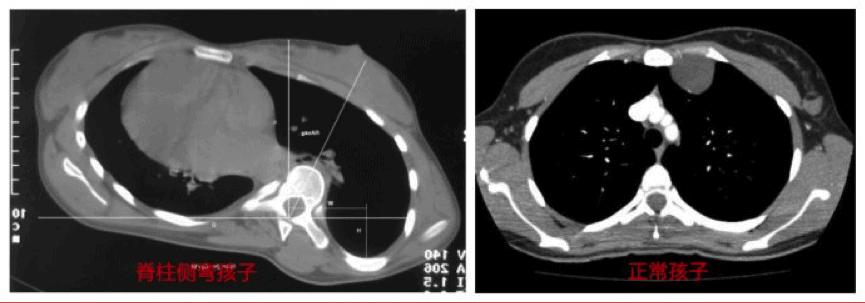 MRI Skoliosis