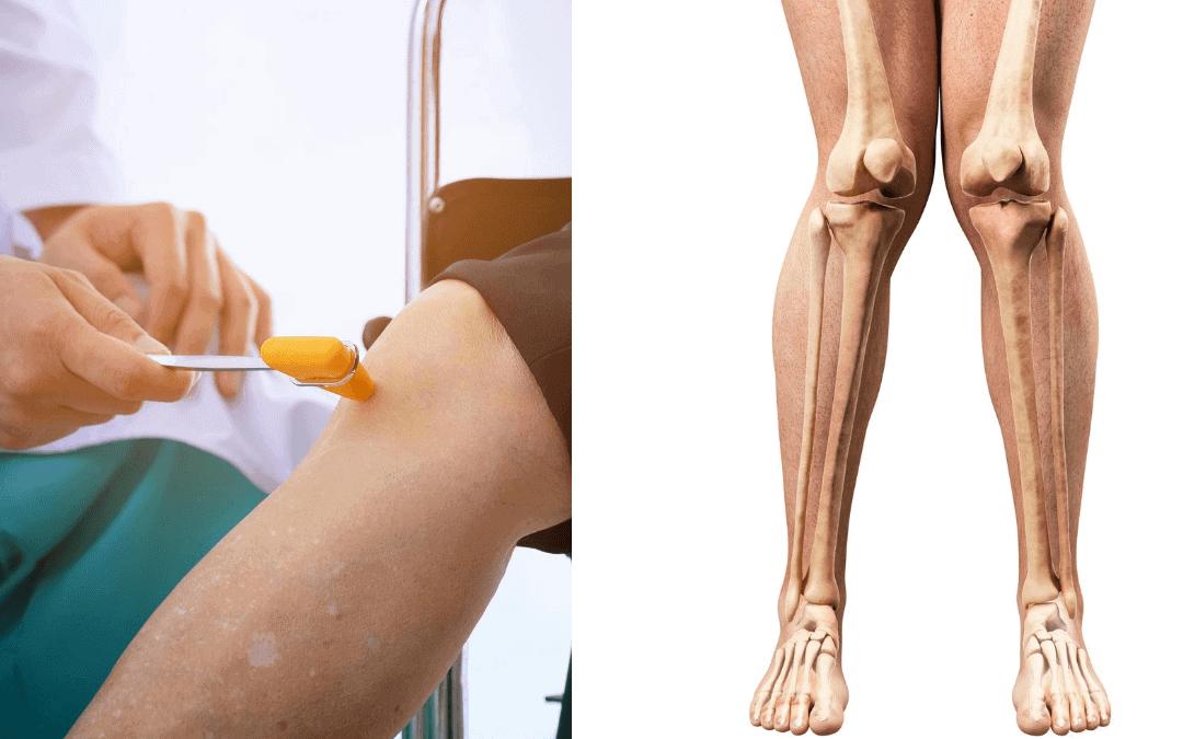 Penyebab Kaki X dan Pengobatan yang Tepat