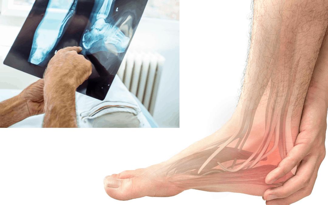 Jangan Abaikan! Ini 7 Penyebab Sakit Tumit Bisa Jadi Berbahaya