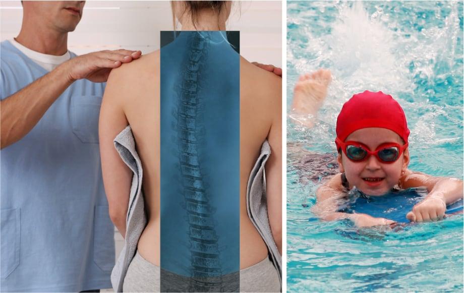 Apakah skoliosis dapat sembuh dengan rutin berenang?