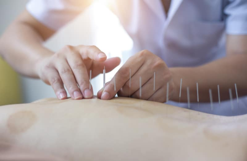 Mengenal Terapi Akupunktur