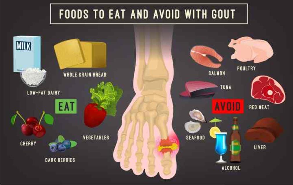 Gout Arthritis, gout arthritis adalah